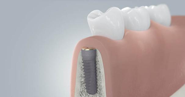 Zahnimplantate Implantation Schritt 3