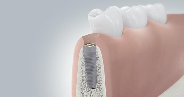 Zahnimplantate Implantation Schritt 4