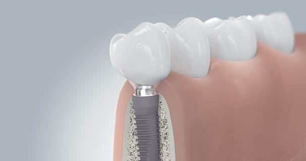 Zahnimplantate Implantation Schritt 6
