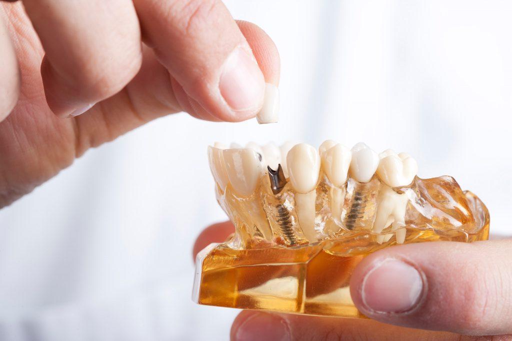 Zahnersatz und Zahnimplantate in Ötisheim bei Mühlacker