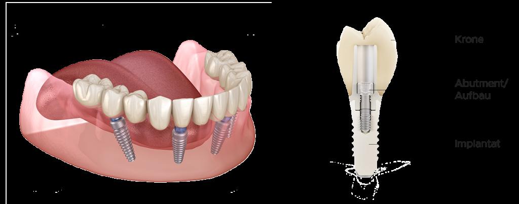 Zahnimplantate Mühlacker - Aufbau moderne Implantologie