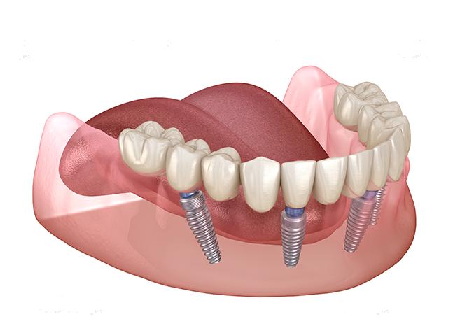 Zahnimplantate Mühlacker - Gebiss moderne Implantologie